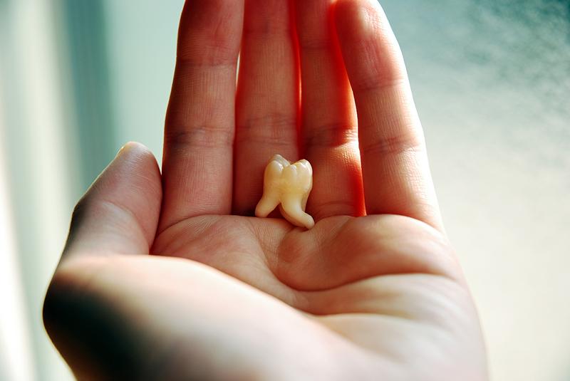 歯のはえかわりの管理