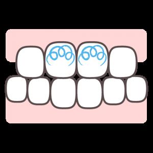 21.7.3.歯ブラシは小刻みに動かす